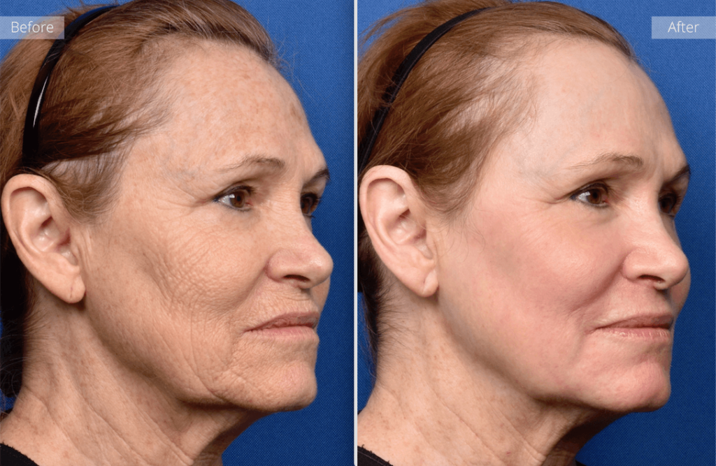 before and after results from laser treatment for wrinkles