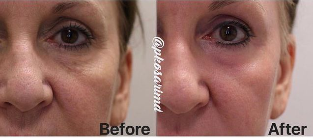 Laser Treatment Before and After